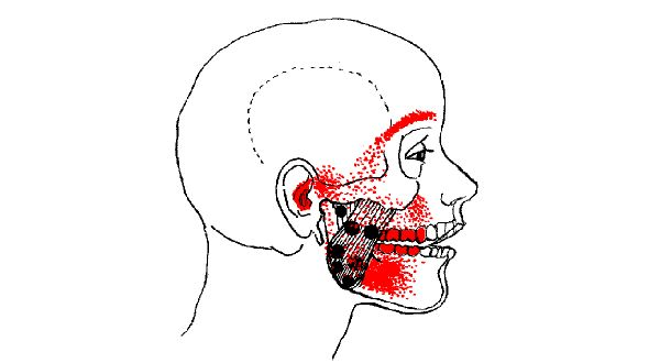 Why Your Jaw May Be Causing Your Eye Socket Pain Tmj Relief