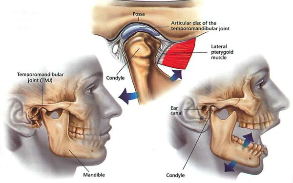Why You Don T Need Surgery To Stop Tmj Tmj Relief